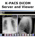 K-PACS Free DiCOM Server and Viewer