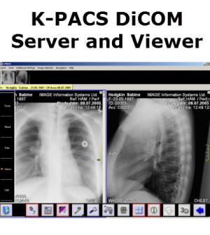 K-PACS Free DiCOM Server and Viewer