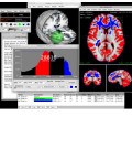 Mango Medical Image PACS Viewer for research